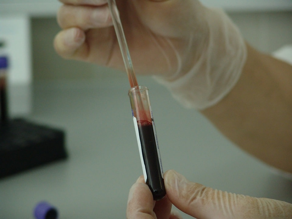 This revolutionary blood test identifies severity of chronic pain