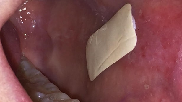 This sticky patch adheres directly to mouth ulcers and delivers steroids