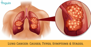 "A novel ""Two Birds one stone approach"" for treating lung cancer and to prevent kidney damage"