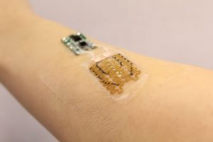 This Smart bandage monitors and medicates chronic wounds when needed