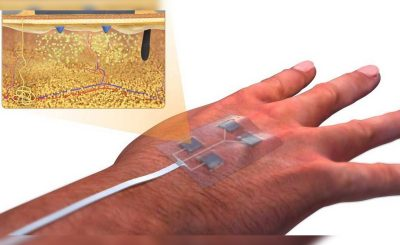 Wireless Wearable Smart Bandage Uconn