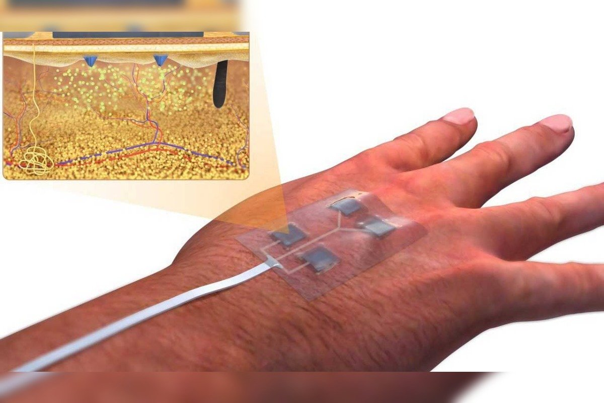 Wireless Wearable Smart Bandage Uconn